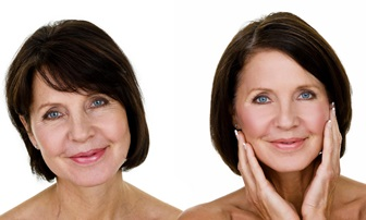 Non Surgical Facelift in Phoenix, AZ