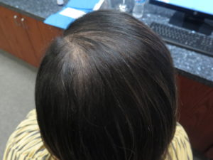 Hair Restoration Before and After Pictures Minneapolis, MN