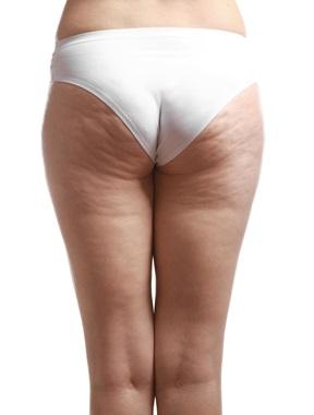 Cellulite Treatment in Phoenix, AZ