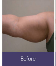 Body Sculpting and Fat Removal (vShape Ultra) Before and After Pictures Phoenix, Minneapolis
