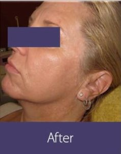 Facial Rejuvenation Before and After Pictures Phoenix, AZ
