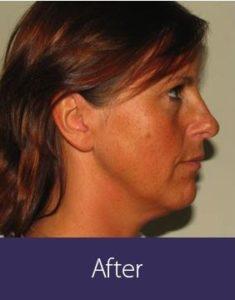 Facial Rejuvenation Before and After Pictures Phoenix, AZ