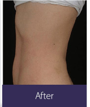 Body Sculpting and Fat Removal (vShape Ultra) Before and