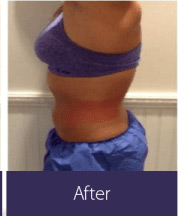 Body Sculpting and Fat Removal (vShape Ultra) Before and After Pictures Minneapolis, MN